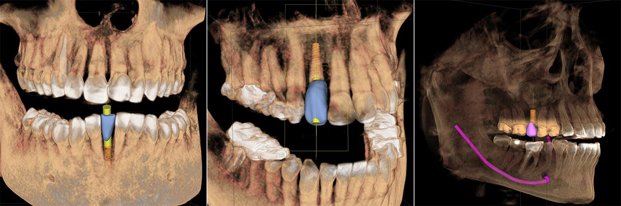 Centennial CO dental implants technology